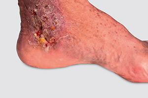 ulcera