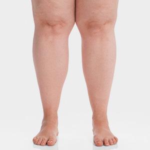 lipedema nas pernas
